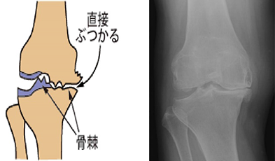 変形が進行した膝関節