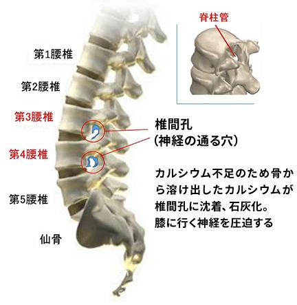 腰椎(腰の骨)の膝を動かす神経の問題から起こる膝痛の説明画像