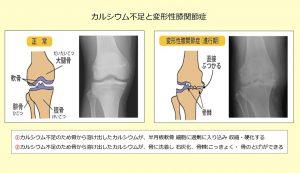 膝関節とカルシウム イメージ